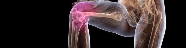 Болезнь, которая легко сделает вас инвалидом 9 причин остеохондроза коленного сустава