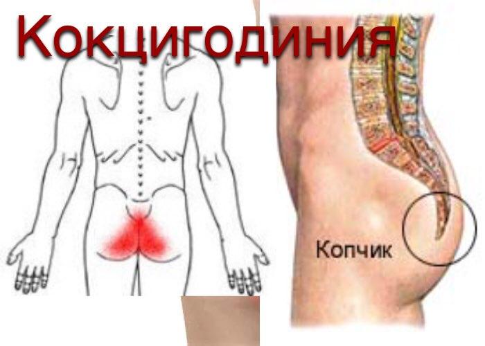 8 противопоказаний гимнастики для копчика + массаж