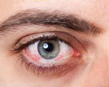Гепатит С – симптомы и лечение