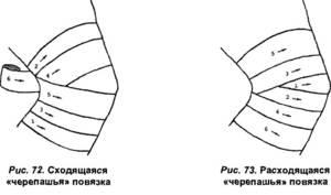 Как вязать черепашью повязку