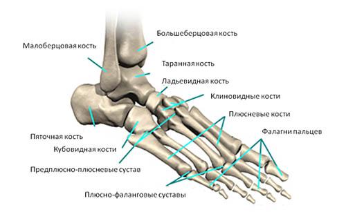 Боль при плоскостопии что именно болит и как её лечить?