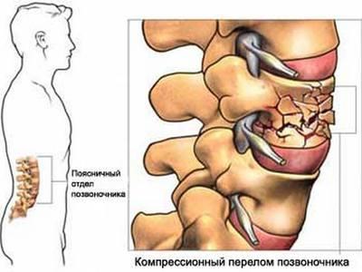 11 симптомов метастазов в позвоночник прогноз срока жизни