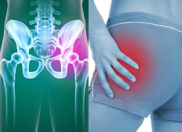 Диспластический коксартроз 4 причины, степени и лечение