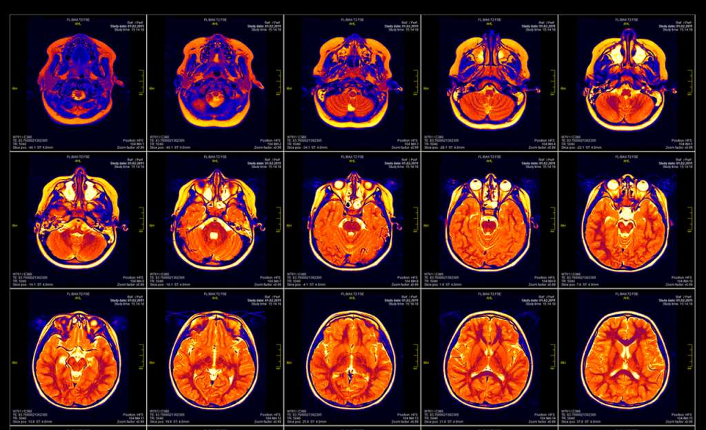 Что такое МРТ шейного отдела 3 нюанса подготовки