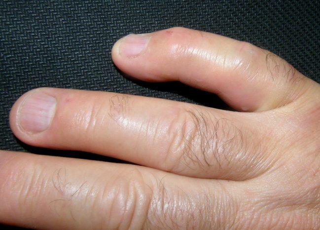 7 причин отёка (опухоли) пальца на руке, что делать?