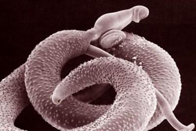 Причина в паразитарной инфекции
