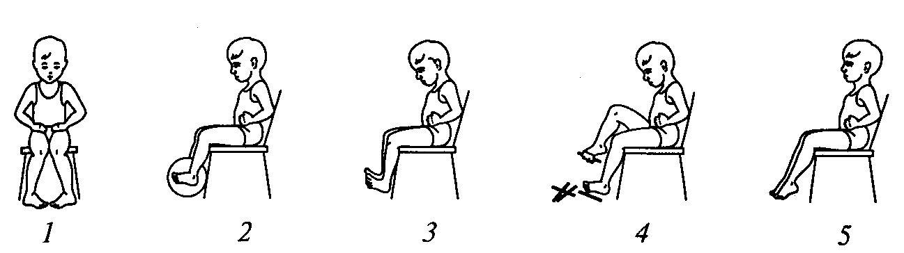 Упражнения для лечения плоскостопия 5 отличных комплексов. Типы плоскостопия