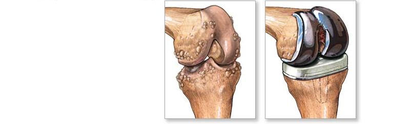 Когда нужна операция по замене коленного сустава? 5 возможных осложнений