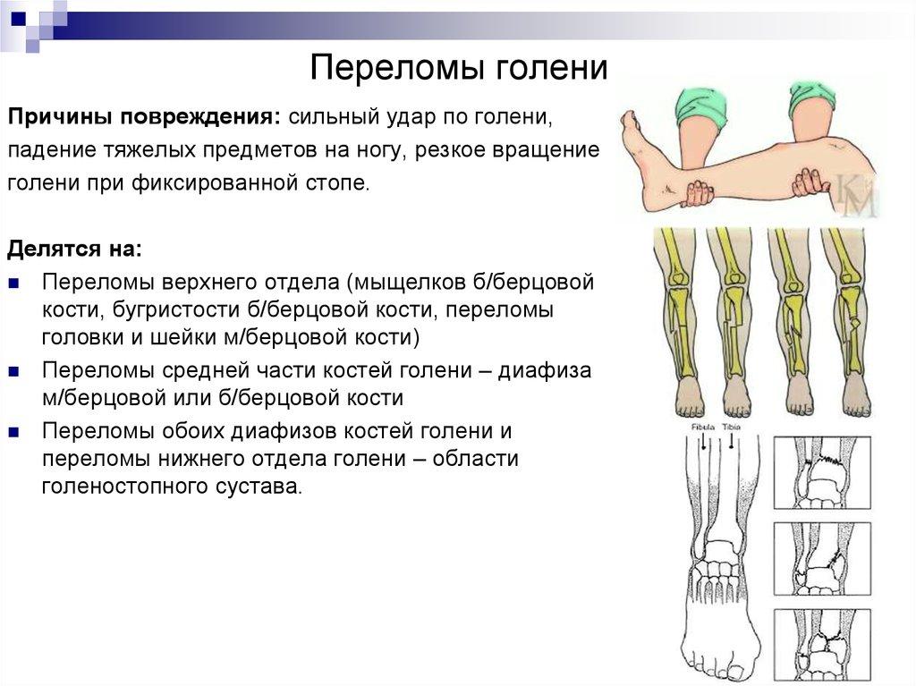 6 видов шин при переломе костей голени и как их накладывать
