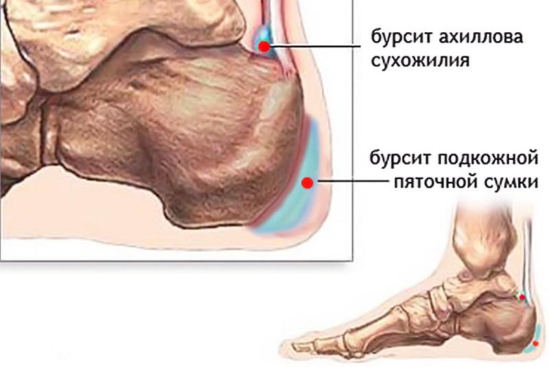 9 причин болей в подушечки стопы как и чем лечить?