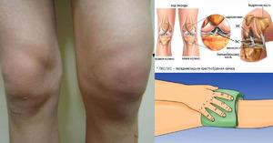 Причины возникновения опухоли в колене