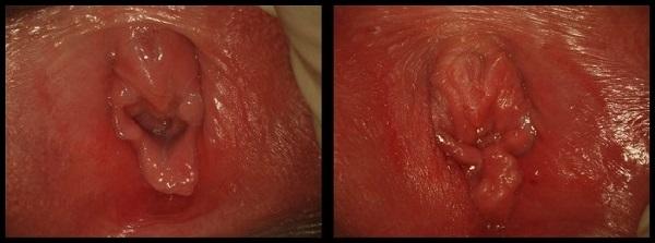 Гименопластика фото до и после