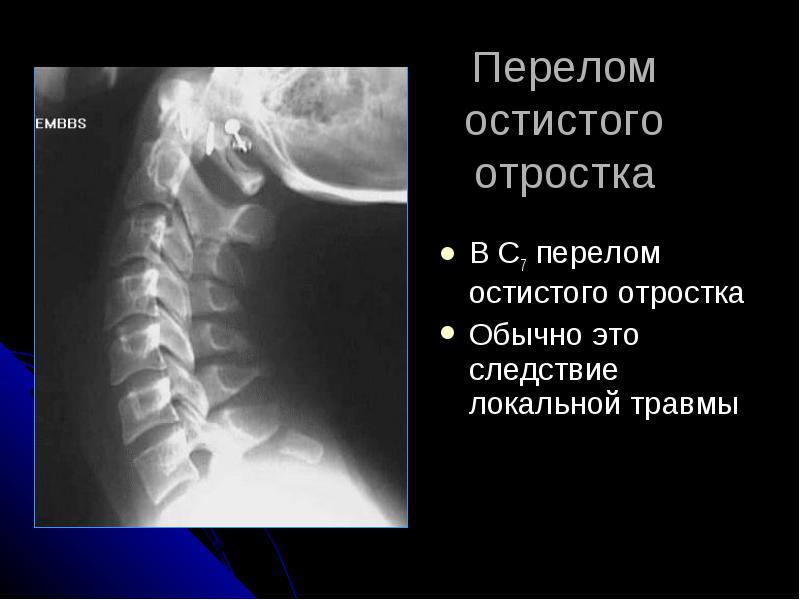 Осложнения при переломах остистого отростка позвонков