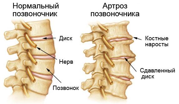 артроз шейного отдела или остеоартроз лечение позвоночника и правильная зарядка