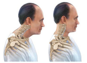 Связь шейного остеохондроза и повышения артериального давления