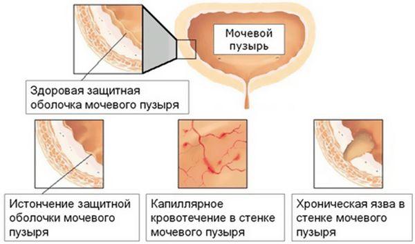 Процесс развития цистита