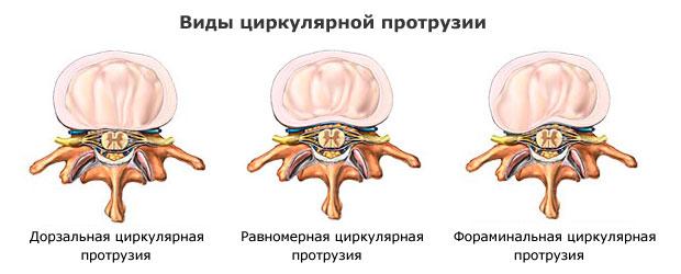 Протрузия поясничного отдела 7 методов лечения