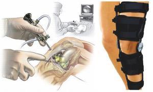 Методика лечения коленного сустава