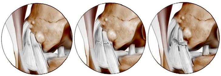 6 признаков разрыва связок коленного сустава + 5 правил неотложной помощи