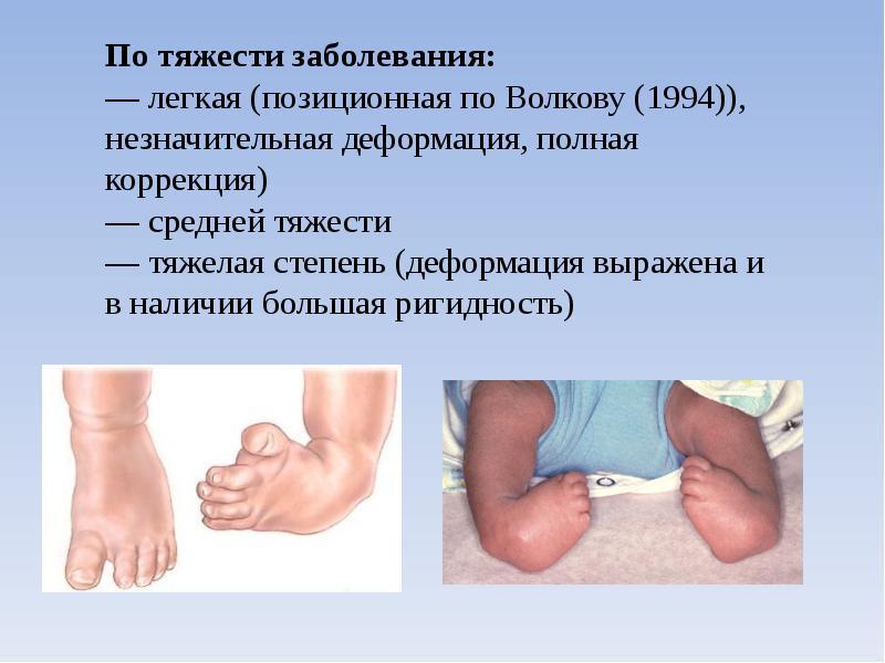 Врожденное косолапие 3 разновидности и лечение