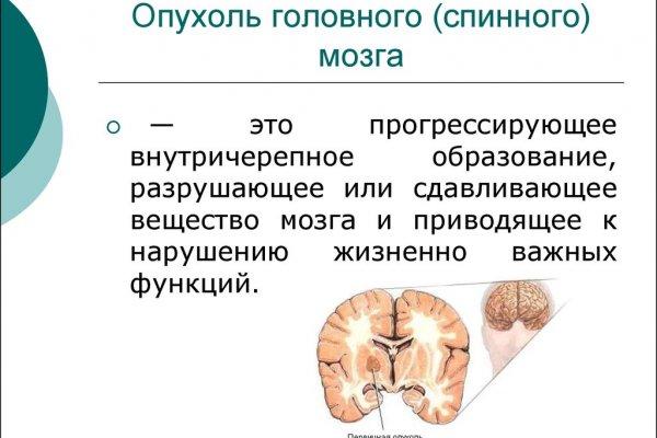 Интрамедуллярная и экстрамедуллярная опухоль спинного мозга прогноз и лечение
