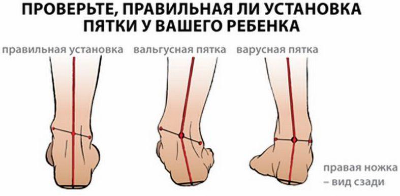 Плосковальгусные стопы, шишка на стопе сверху и сбоку, косточка на ступне.