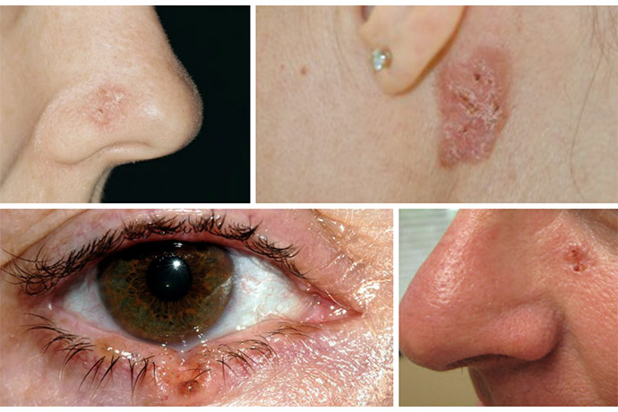 Проявление рака кожи на носу, за ухом и в области глаза