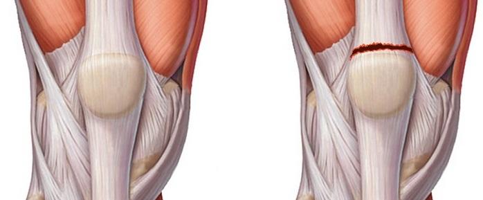 Растяжение связок колена причины, признаки и правильное лечение