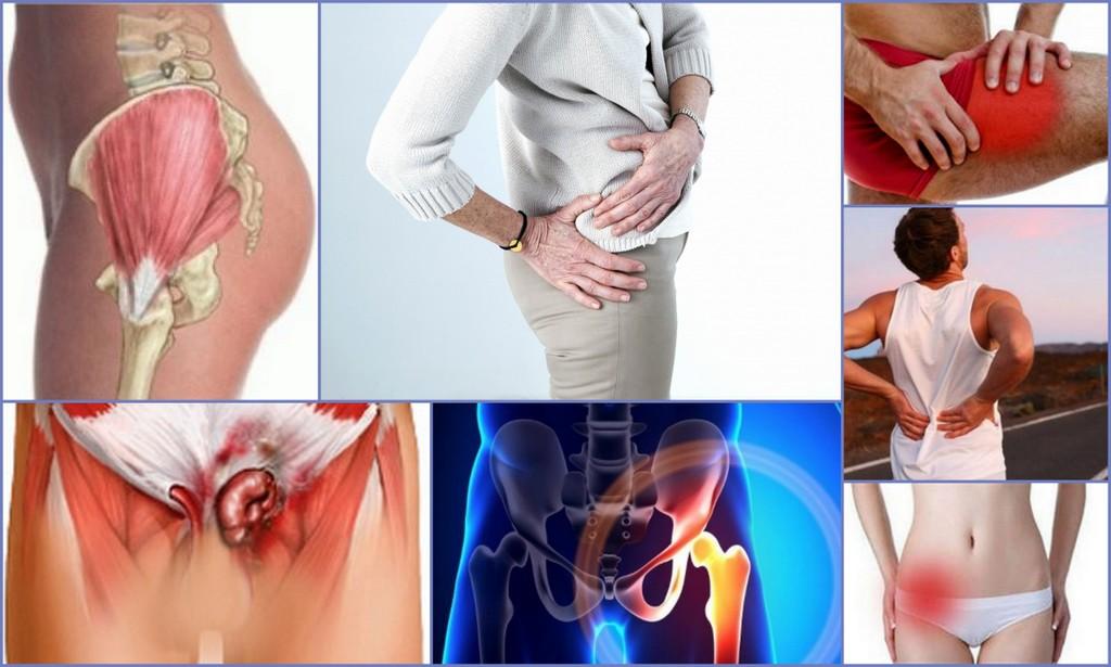 Воспаление бедренного сухожилия или тендиноз тазобедренного сустава, лечение.