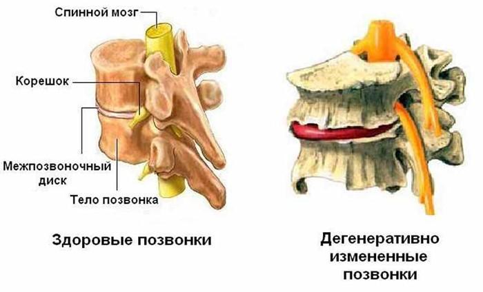 Инвалидность и дегенеративно-дистрофические изменения позвоночника
