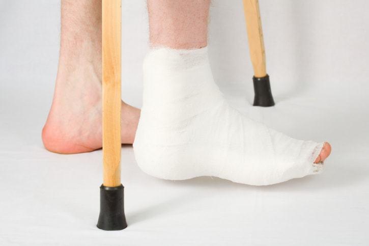 Когда можно снимать гипс после перелома пятой плюсневой кости?