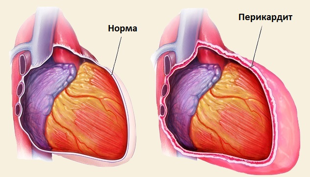 Почему болит спина и сердце одновременно связь с болезнями
