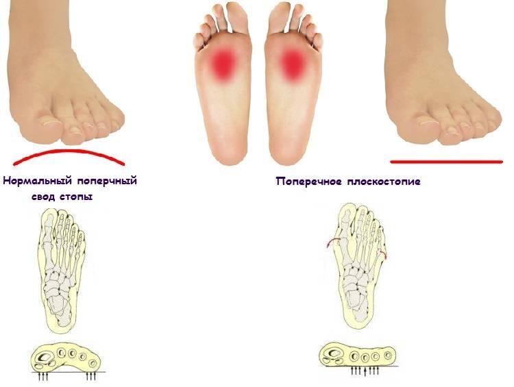 6 симптомов поперечного плоскостопия разных степеней