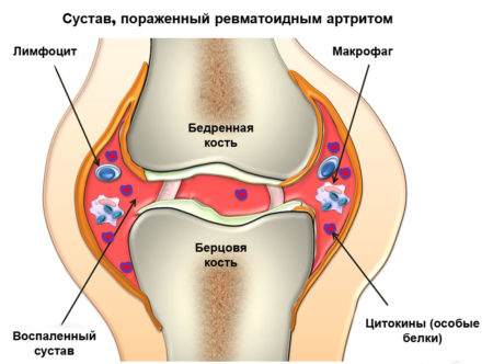 Куда ставят пиявки от высокого артериального давления, клиническая эффективность, показания к назначению, противопоказания