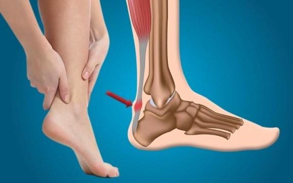 4 причины боли в сухожилии над пяткой как и чем лечить?