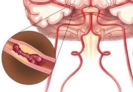 5 методов лечения деформирующего спондилеза, чем опасно заболевание?