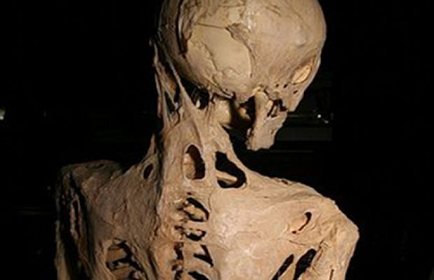 Аномалии развития скелета при фибродисплазии