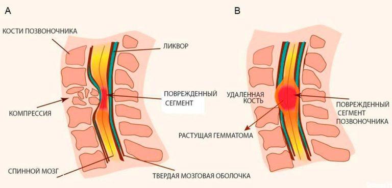 Как распознать ушиб позвоночника (шейного, грудного, поясничного)?