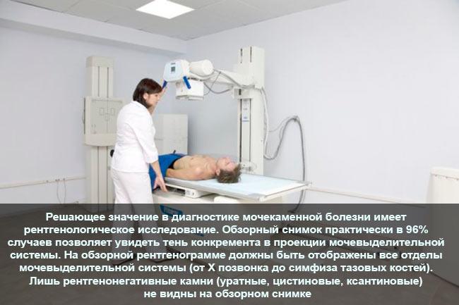 Рентгенография при мкб