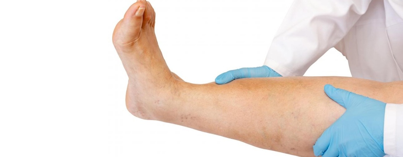 6 Методов лечения опухшего коленного сустава, как не навредить себе?