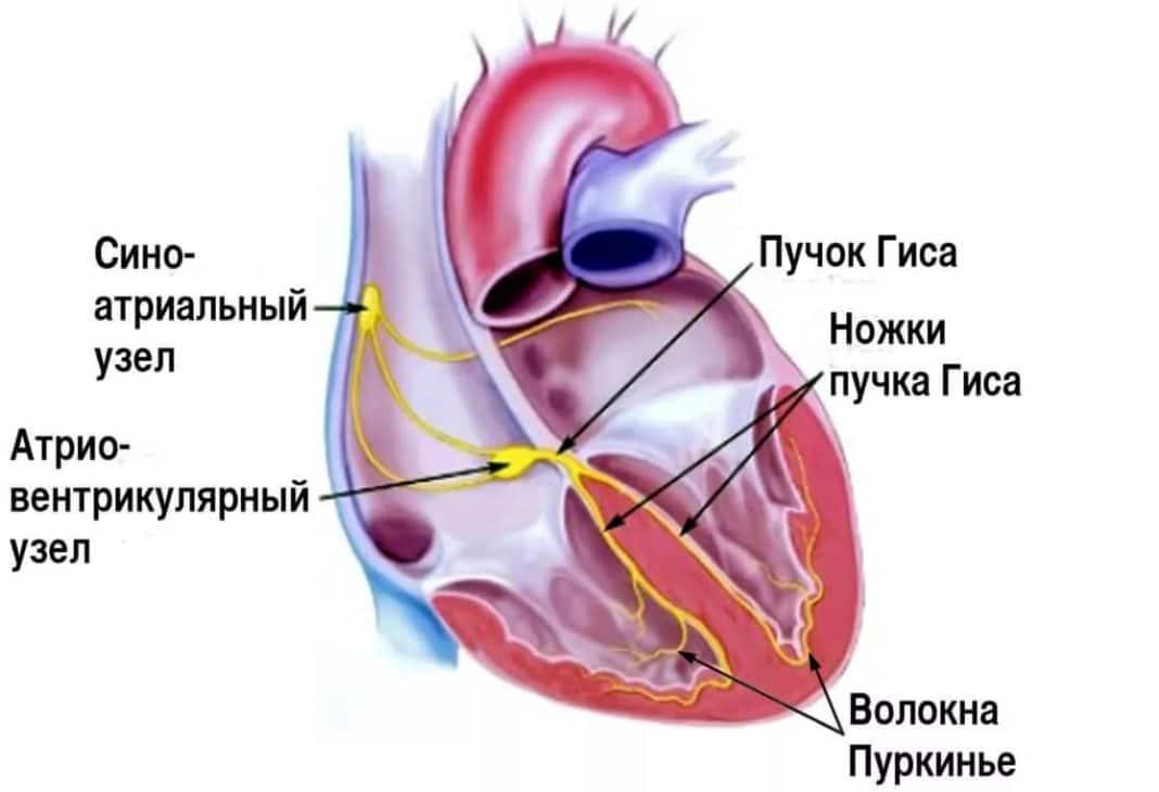 Блокада ножки сердца