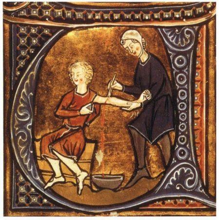 Как методика кровопускания может облегчить состояние при высоком давлении и убрать симптоматику