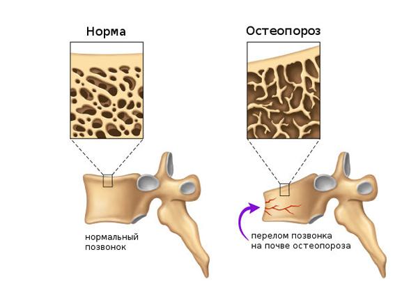3 самых серьёзных последствия при переломах позвоночника. Как лечиться?