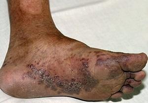 Узелковые поражения на коже