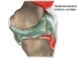 Как развивается заболевание коленного сустава