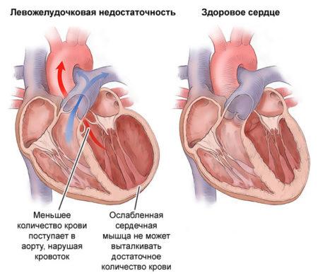 Что нужно знать об артериальной гипертензии 3 степени каждому человеку?