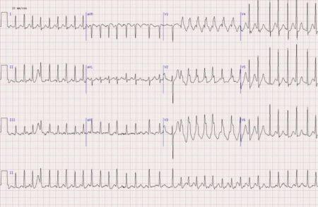 Особенности оказания первой помощи при низком артериальном давлении, причины гипотонии, симптомы и основные правила