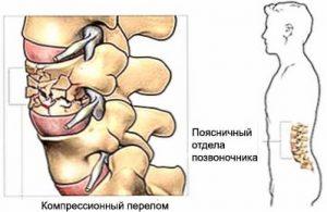 6 осложнений компрессионного перелома позвоночника поясничного отдела