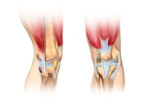 Растяжение связок колена: лечение