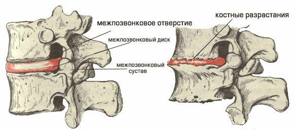 12 причин остеофитов позвоночника (костных наростов) боль в спине может быть из-за этого